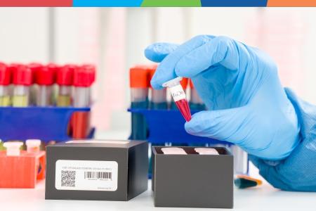 NOU! Testul Anticorpi Neutralizanți Proteina Spike